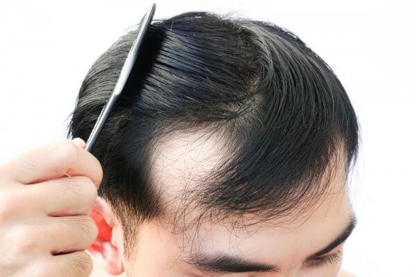 Cómo evitar la caída del cabello en hombres