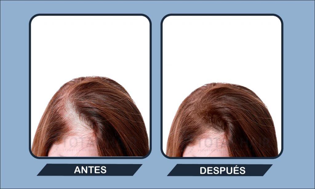 Resultados implante capilar mujer antes y después paciente 6