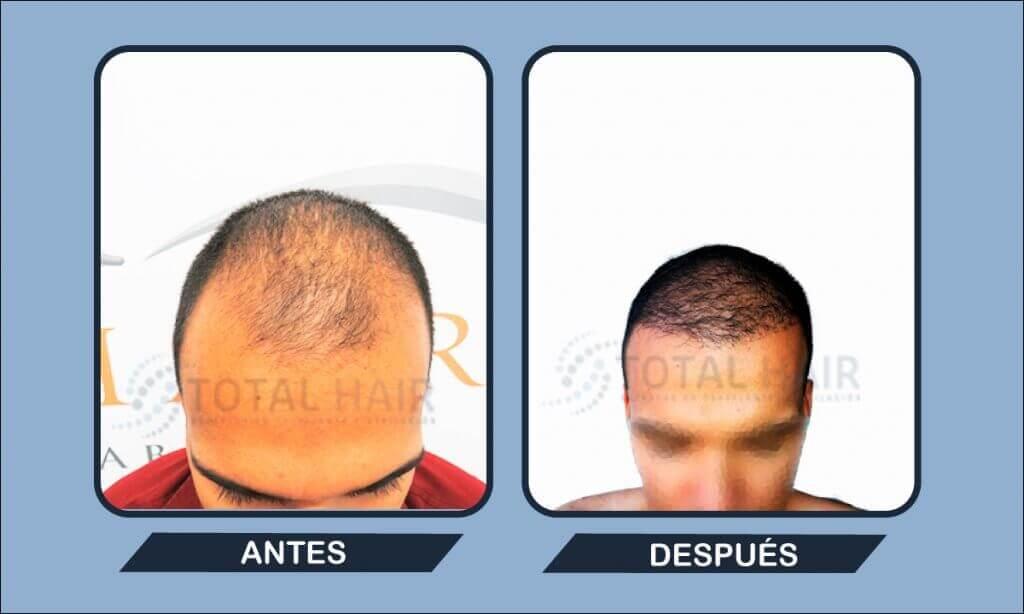 Resultados implante capilar hombre antes y después paciente 10