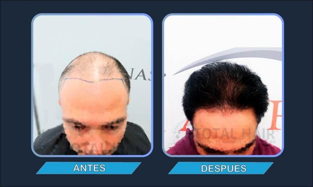 Resultados implante capilar hombre antes y después paciente 1