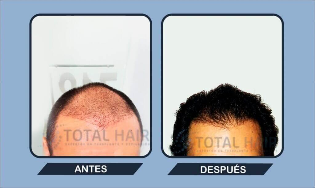 Resultados implante capilar hombre antes y después paciente 2