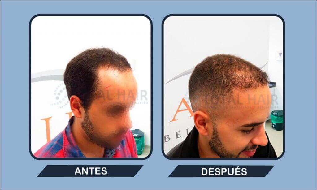 Resultados trasplante capilar hombre antes y después paciente 7