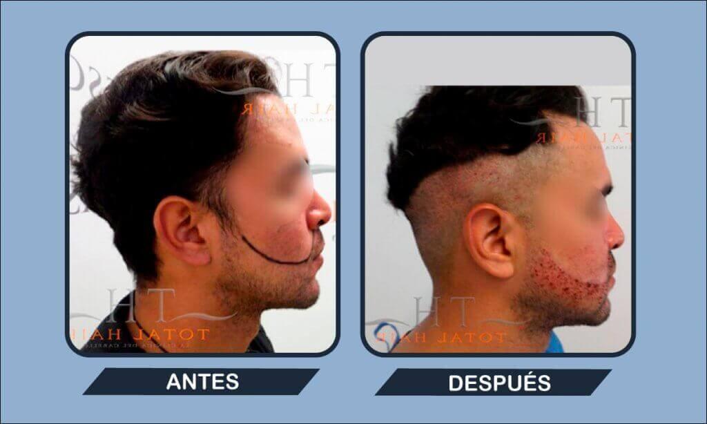 Resultados implante de barba antes y después paciente 11
