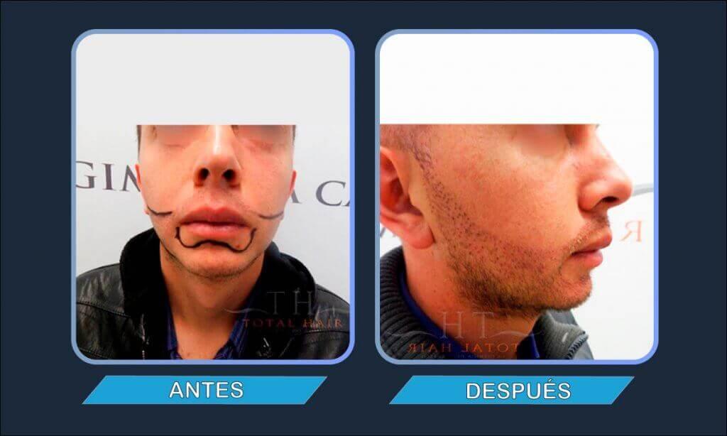 Resultados implante de barba antes y después paciente 12