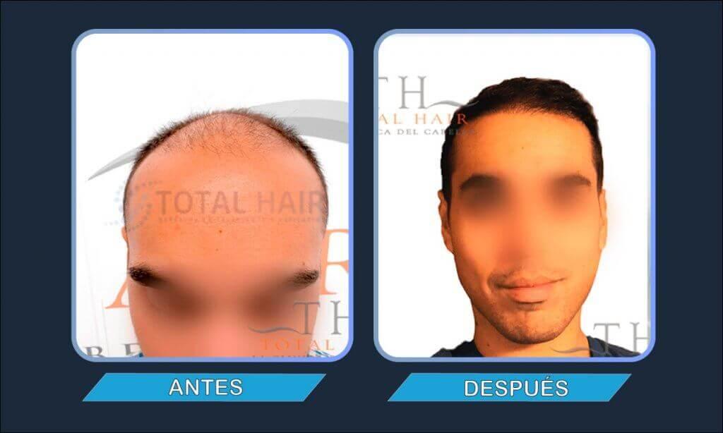 Resultados implante de pelo hombre antes y después paciente 9