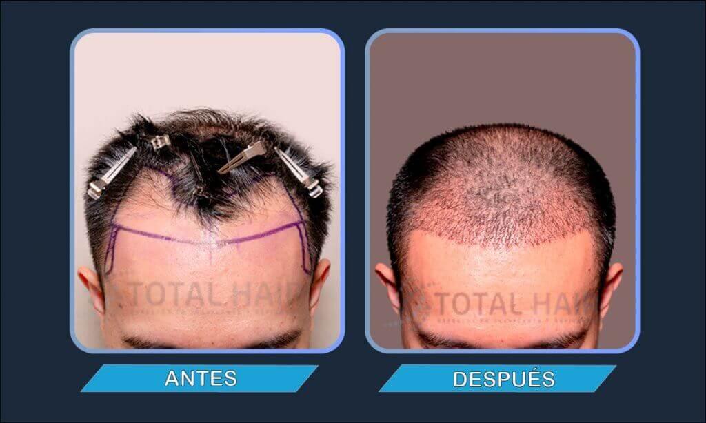 Resultados implante de pelo hombre antes y después paciente 5