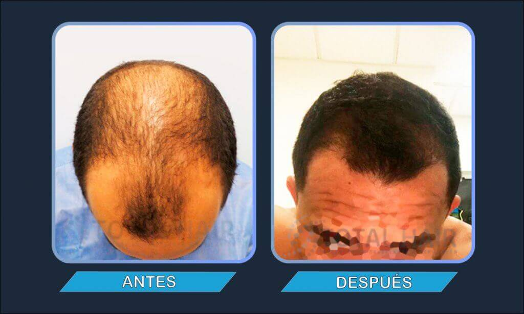 resultados injerto capilar antes y despues paciente 8