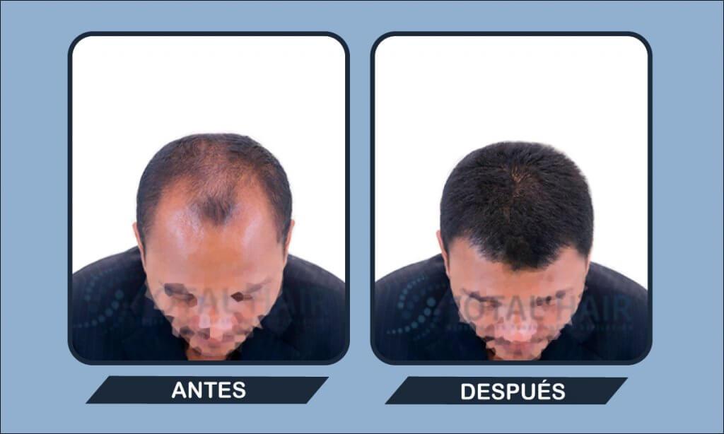 Resultados trasplante capilar hombre antes y después paciente 3