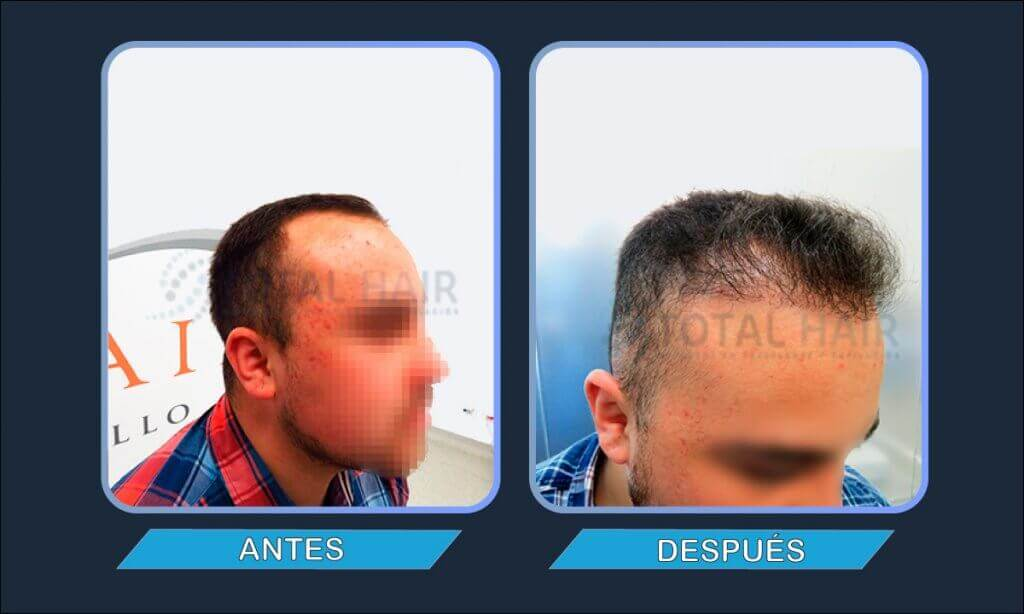 Resultados trasplante capilar hombre antes y después paciente 4