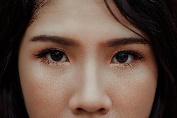 trasplante de cejas antes y despues
