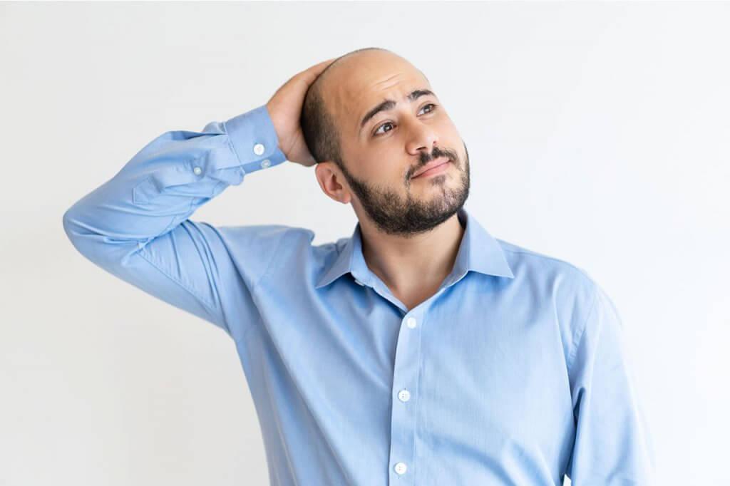 tratamientos para la calvicie