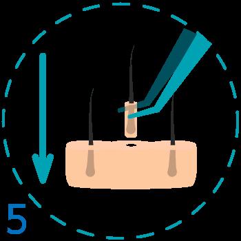 Implantación de los folículos pilosos