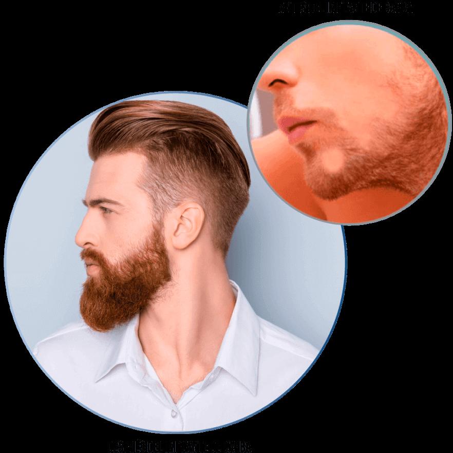 Implante de barba bogotá